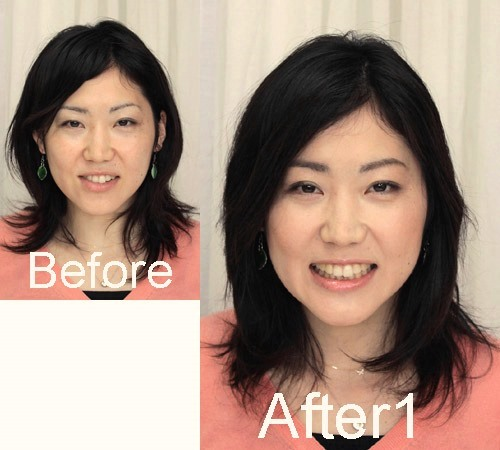 fuu-minさん-before-after1