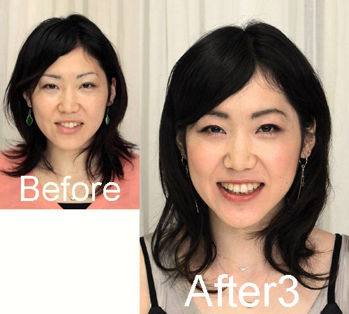 fuu-minさん-before-after3