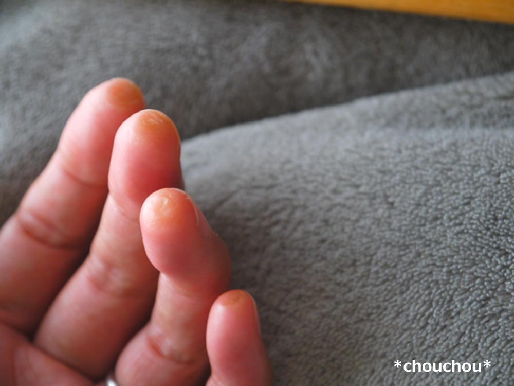 左手 指先