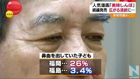 鼻血調査(福岡)\91126863鼻血を出していた子供、福岡26%、福島3.4%、【TBS】子どもの鼻血率を調べた結果、福島と福岡で8倍もの差が