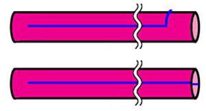bracelets 1-A