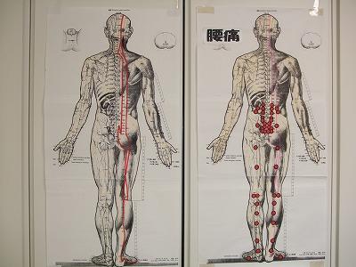 s-経絡(腰痛)