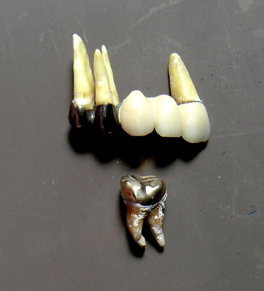 貴金属冠の抜去歯