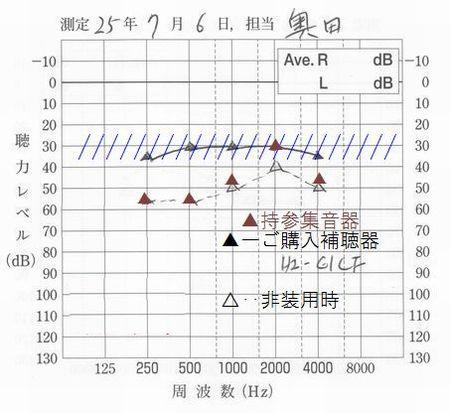 補聴器と集音器の違い10