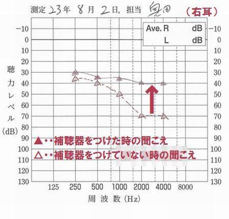 補聴器の効果測定1