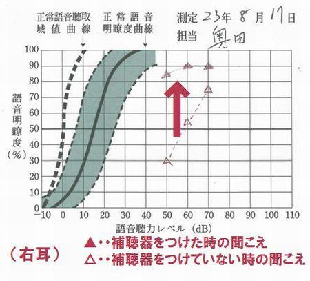 補聴器の効果測定2
