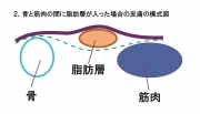皮膚表面状態の模式図2