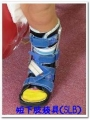 短下肢装具(SLB)