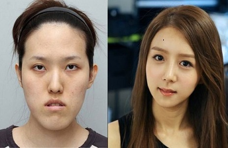 korean_plastic_surgery_07_580.jpg